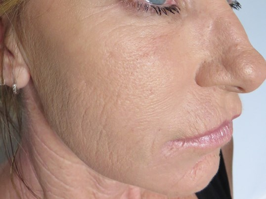 Juvederm + Microneedling + PRP After Dr. Lee