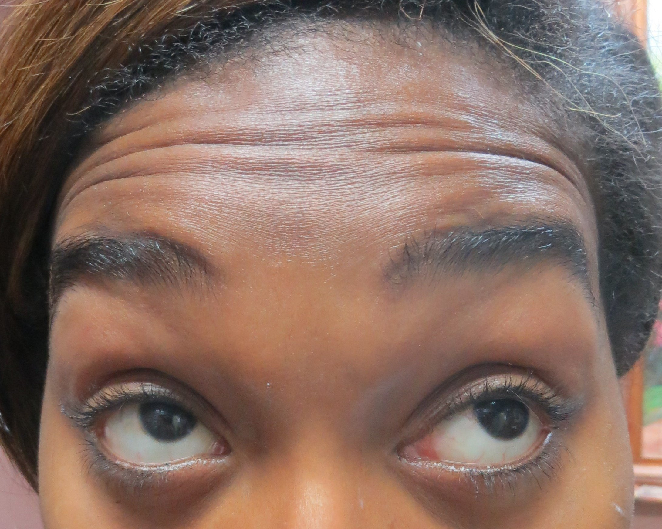 Botox for Forehead lines Before Botox & Dr. Lee