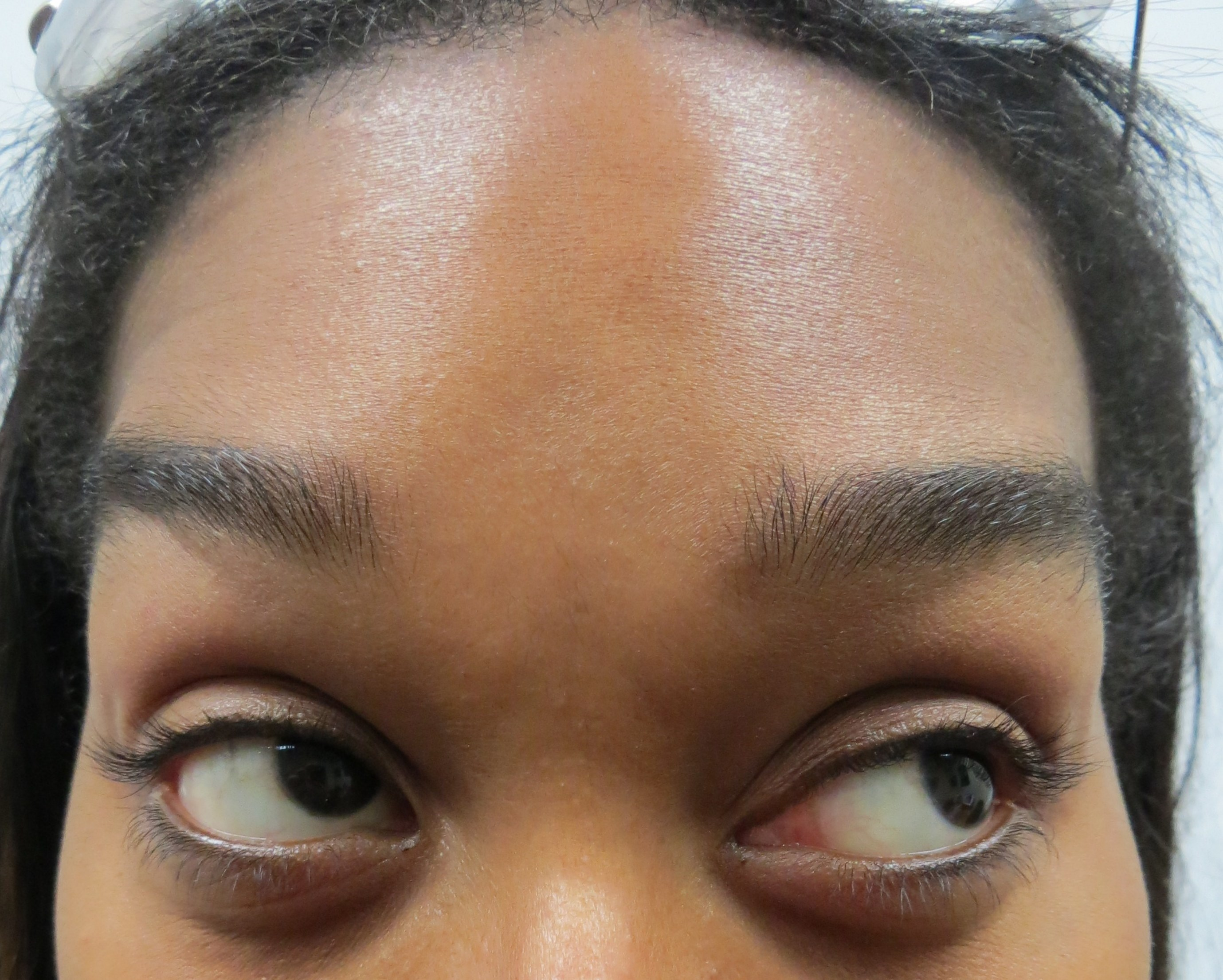 Botox for Forehead lines After Botox & Dr. Lee