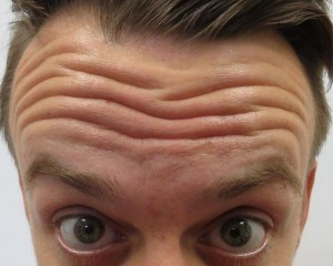 Botox -- not just for women! Male patient Before Botox