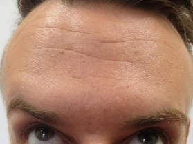Botox -- not just for women! Patient After Botox