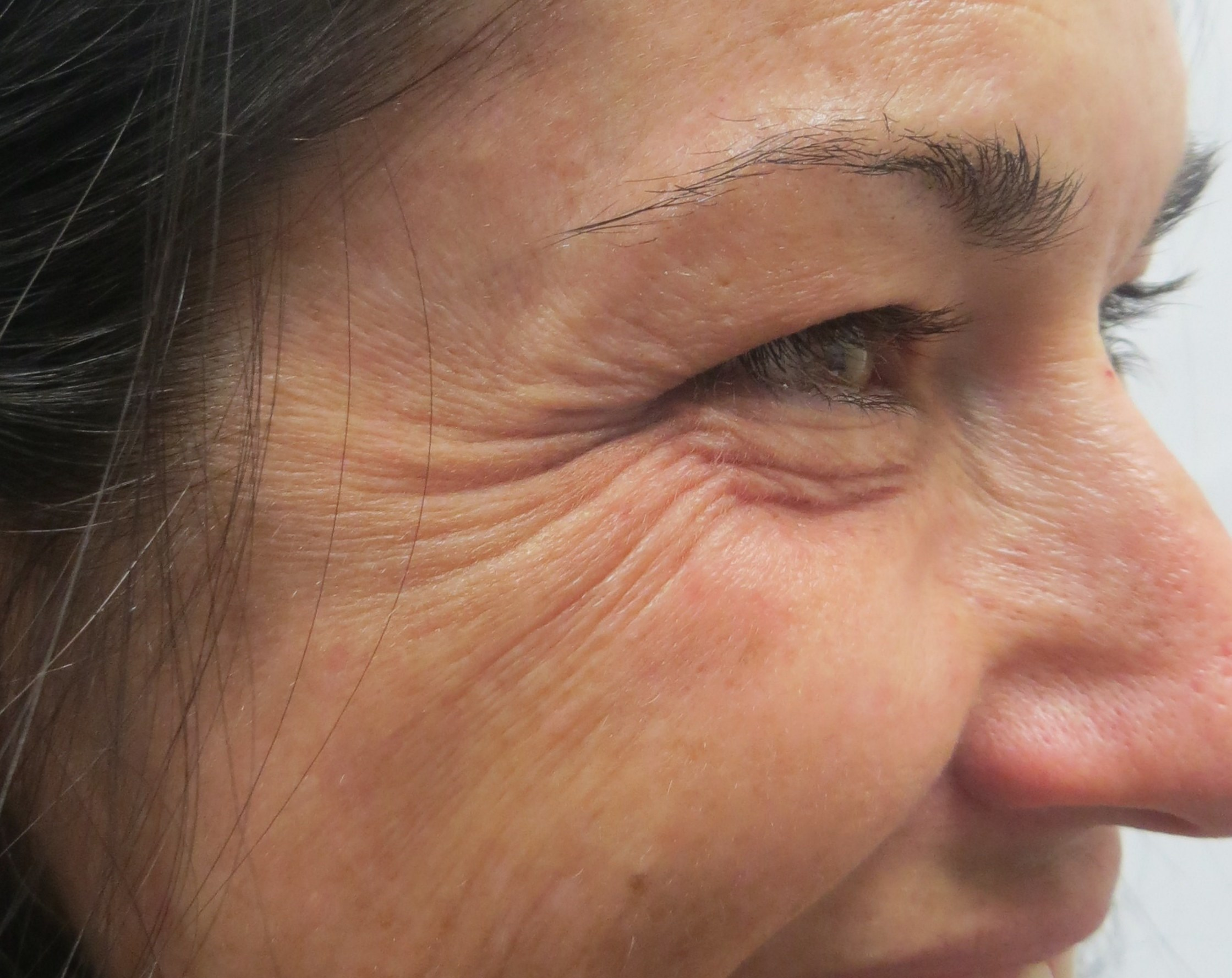"Botox for ""Crows Feet"" Before Botox & Dr. Lee"