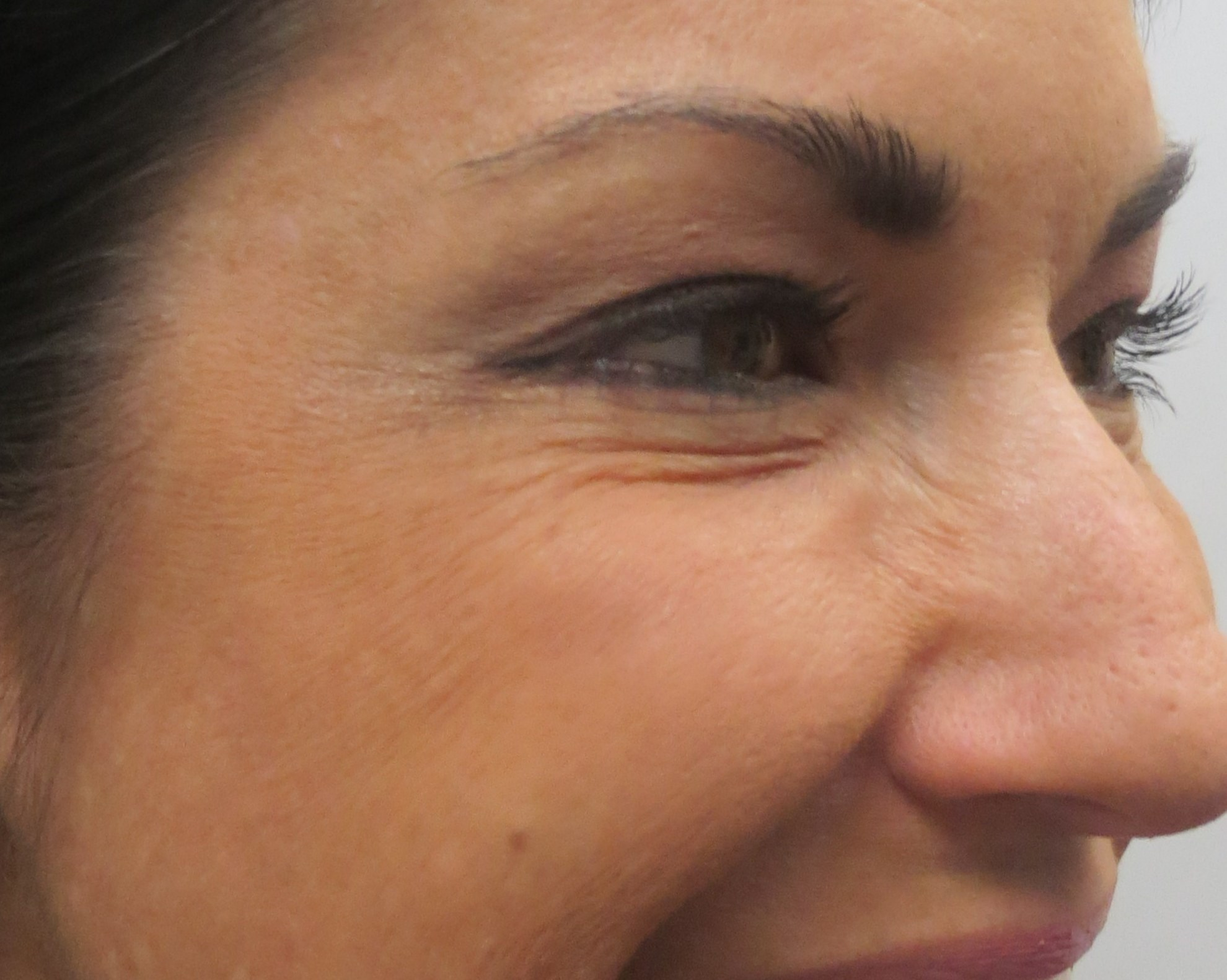 "Botox for ""Crows Feet"" After Botox & Dr. Lee"