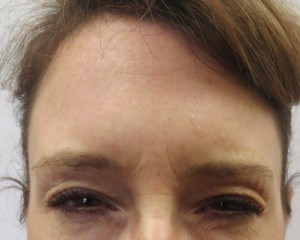 Botox relaxes the frown lines No Frown Lines After Botox