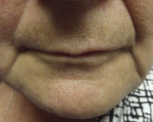 Juvederm - Marionette Lines Before