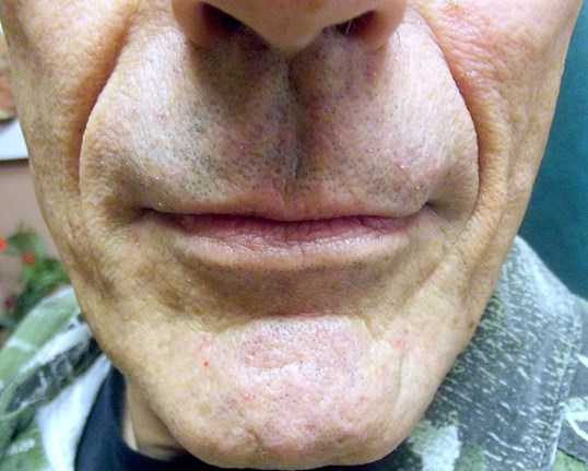 Juvederm - Nasolabial Folds Before Juvederm