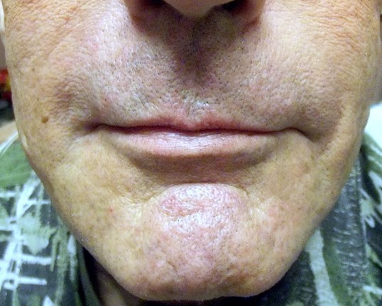 Juvederm - Nasolabial Folds After Juvederm