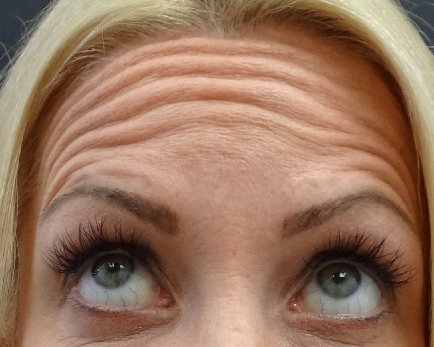 Botox in Henderson / Las Vegas Forehead Before Botox