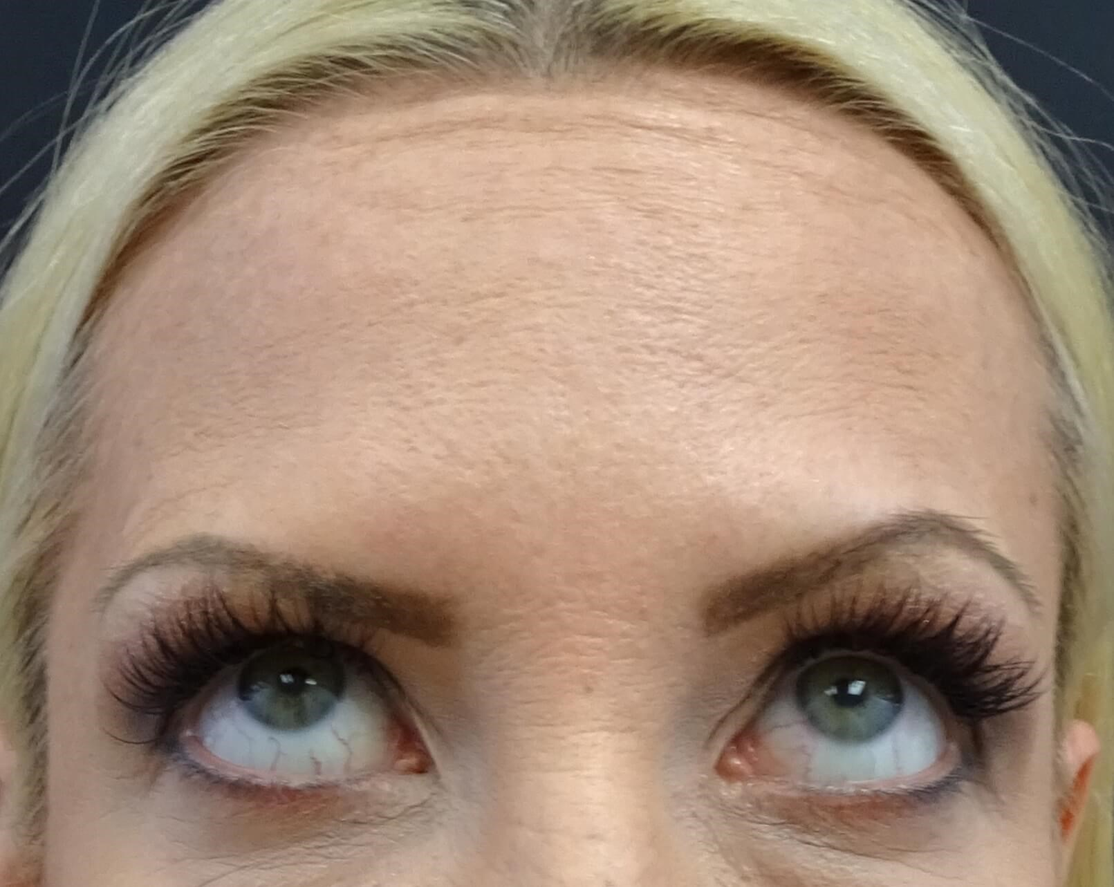 Botox in Henderson / Las Vegas Forehead After Botox