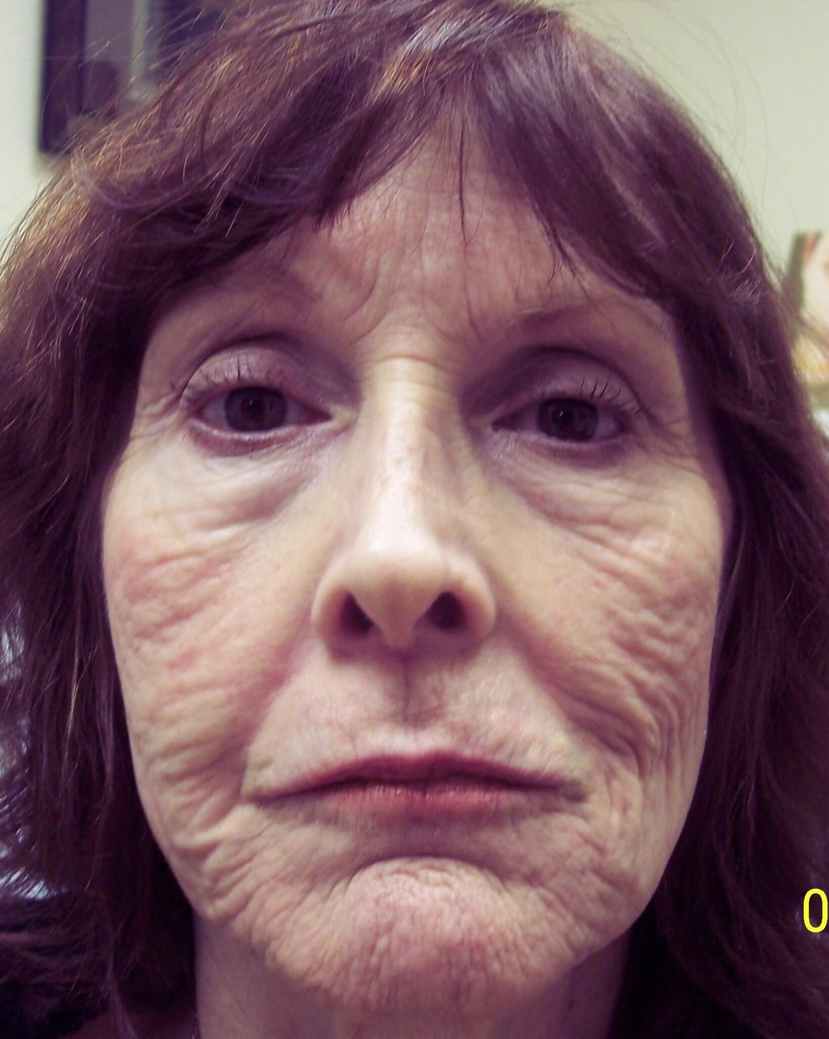 Juvederm Replaces Lost Volume Before Dr. Lee