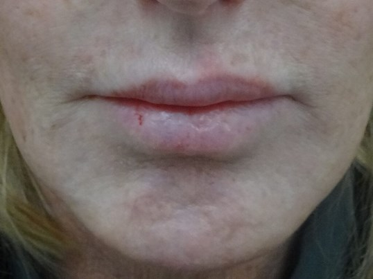 Lip Filler in Henderson Before Restylane Injection