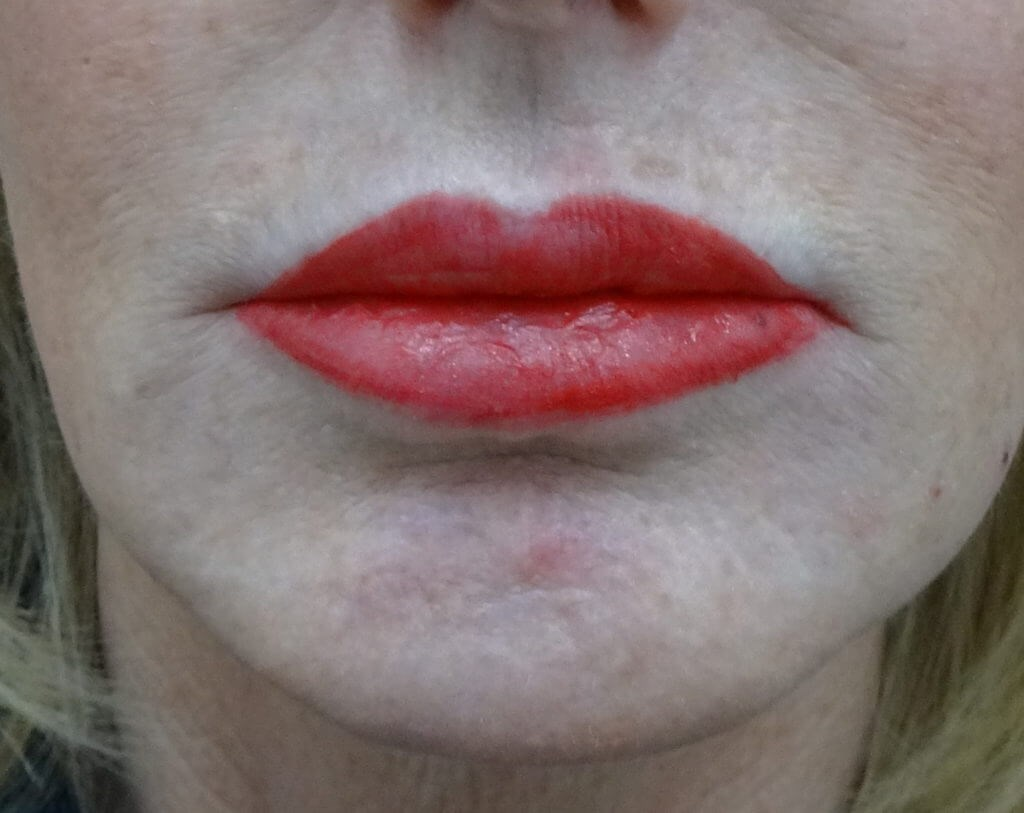 Lip Filler in Henderson After Restylane Injection