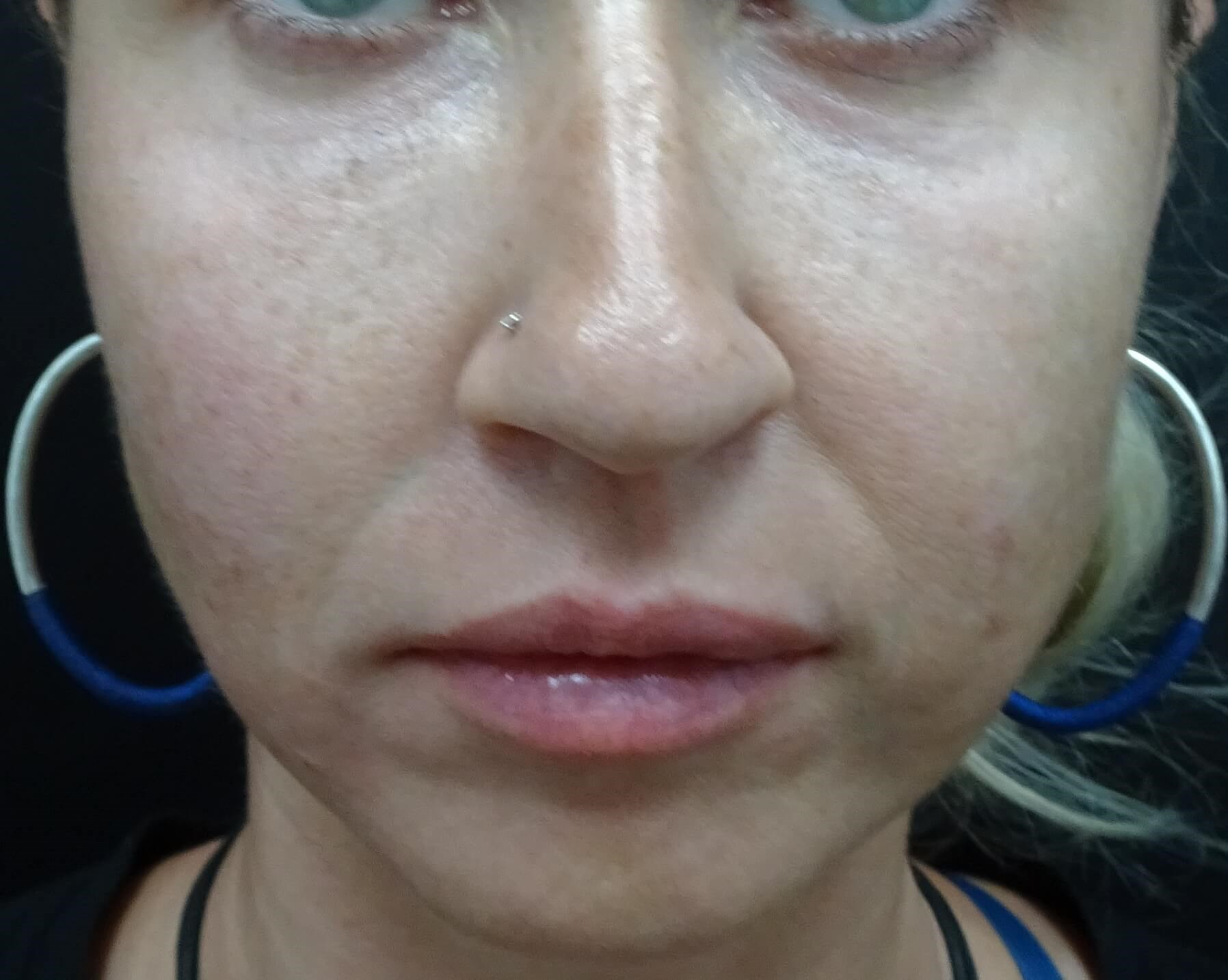 Cheeks, Lips, Marionette Lines After Restylane Injection