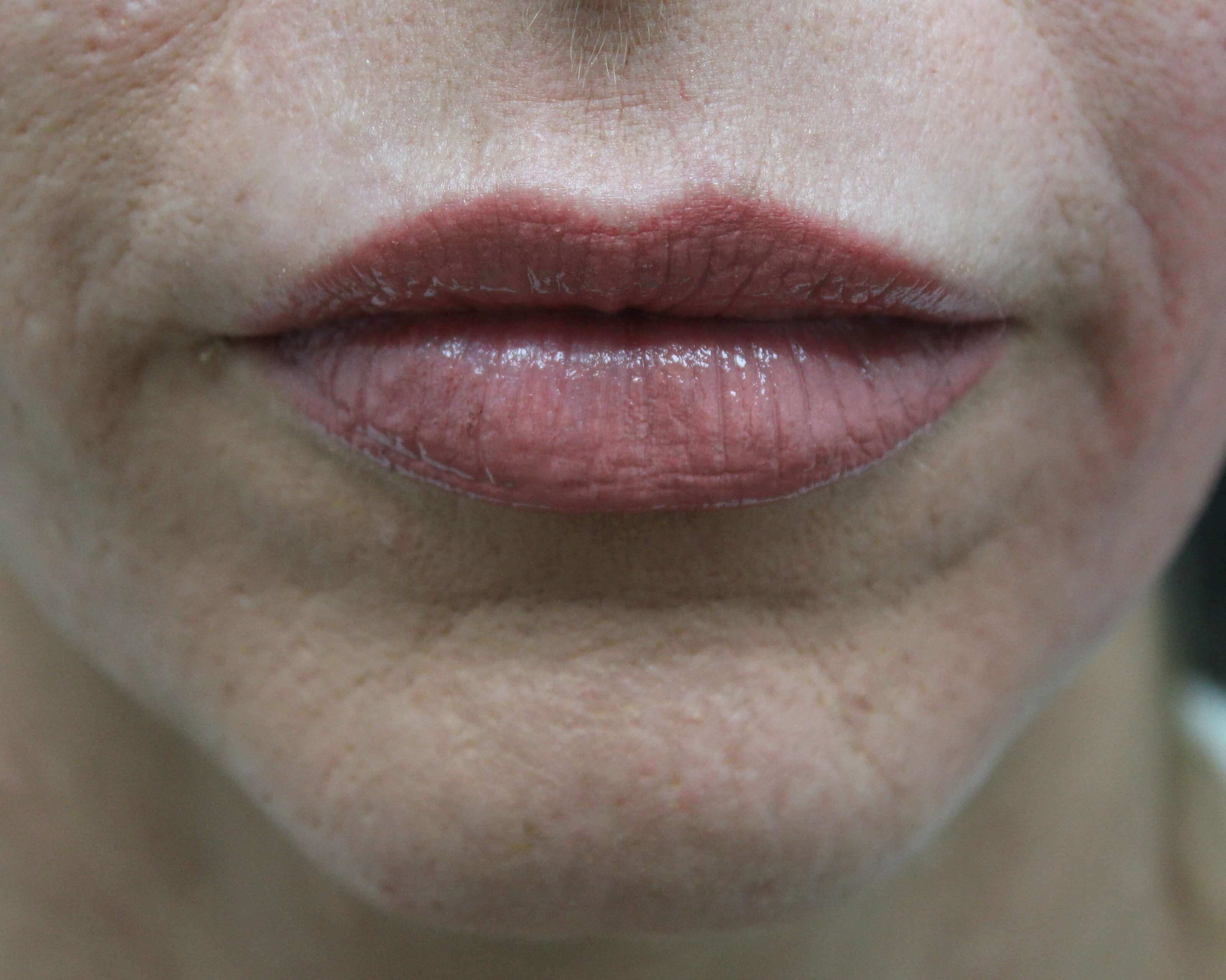 Lip Injection in Las Vegas Lips After Restylane