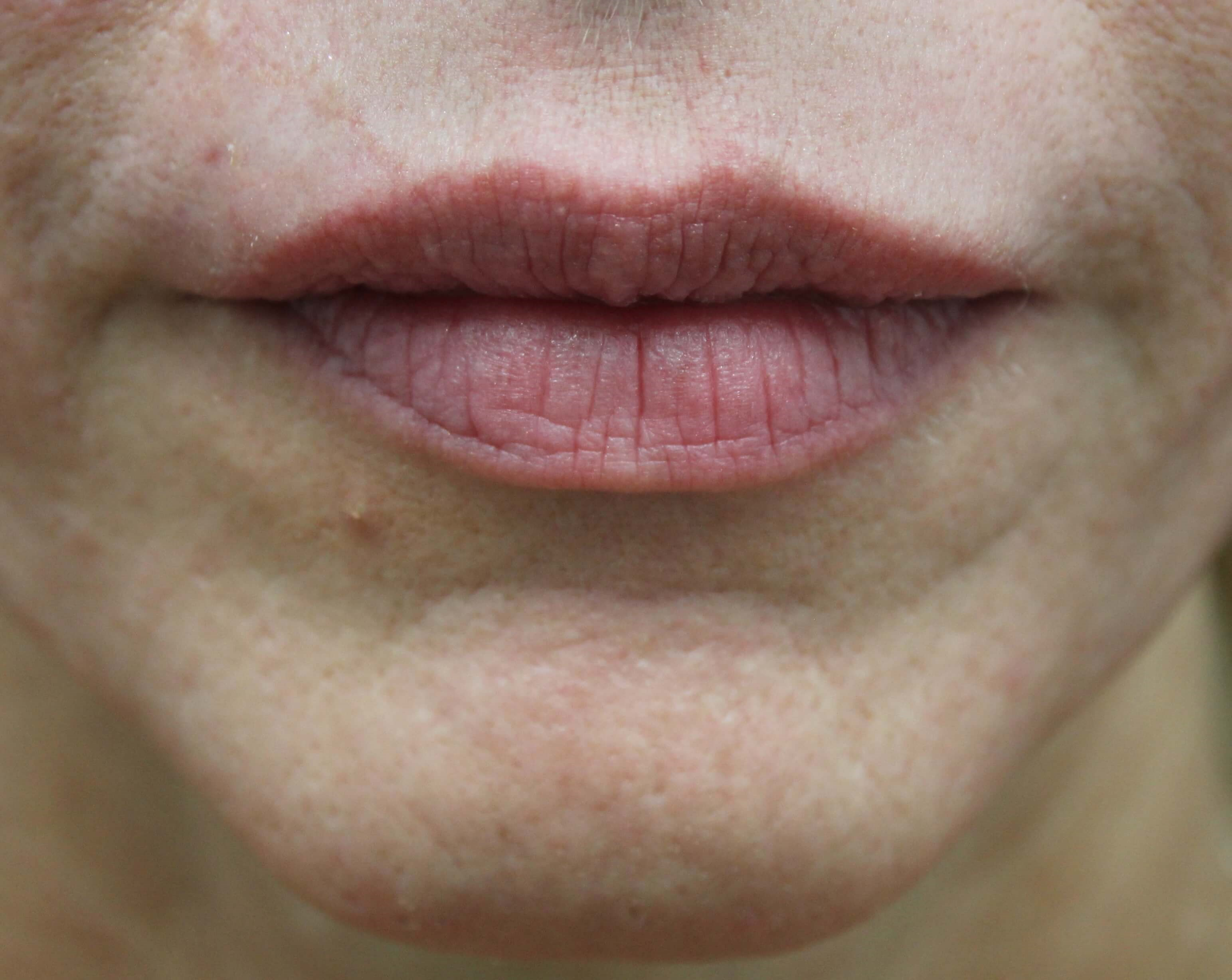 Lip Injection in Las Vegas Lips Before Restylane