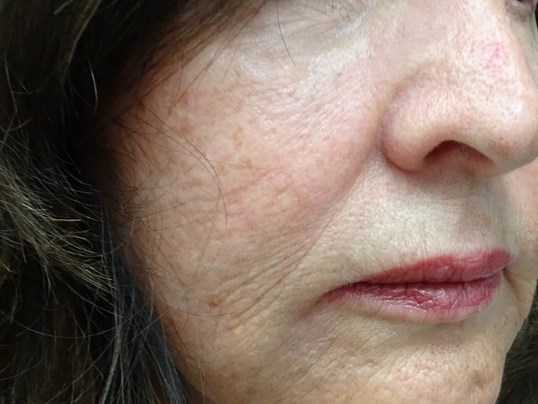 Cheek Filler - side view Before Restylane Lyft