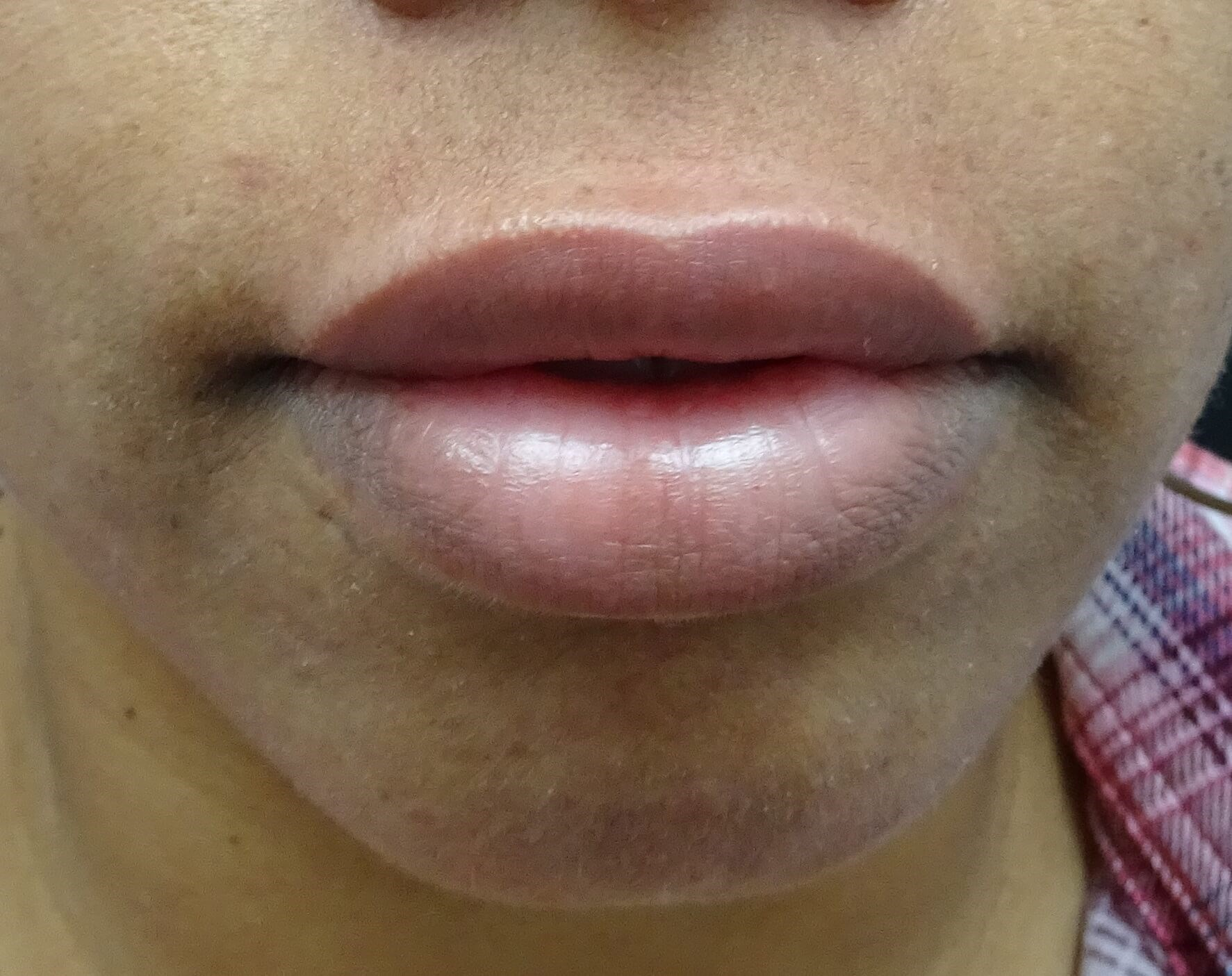 Bottom Lip Too Full in Nevada Lips After Restylane