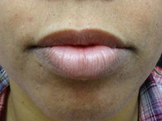 Bottom Lip Too Full in Nevada Lips Before Restylane