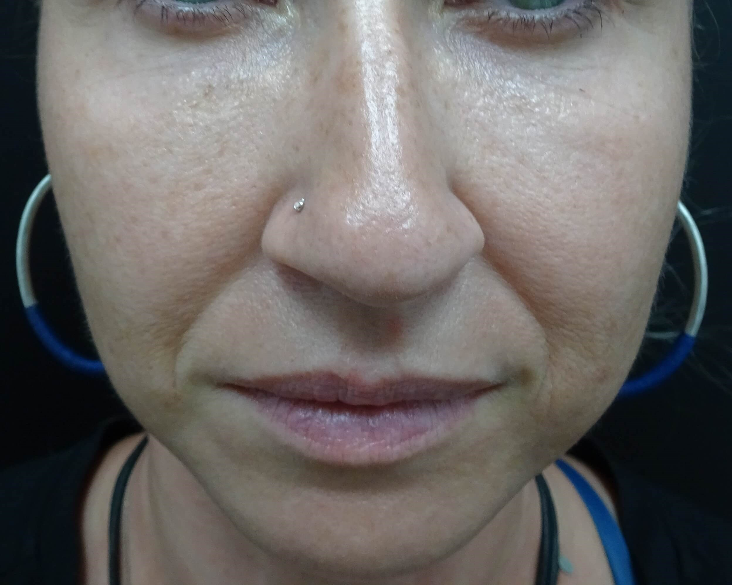Cheeks, Lips, Marionette Lines Before Restylane Injection