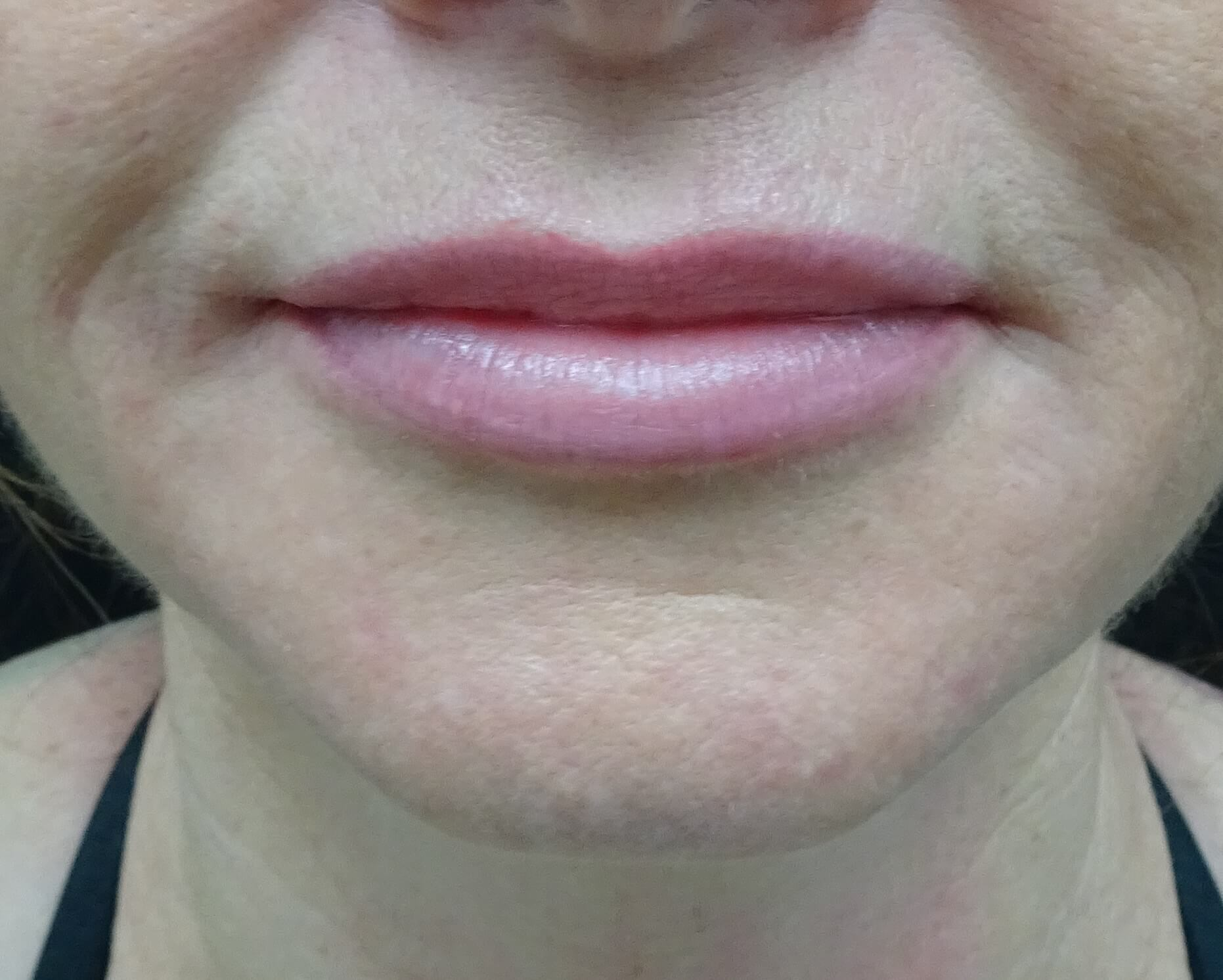 Restylane in Henderson & LV 1 Week After Injection