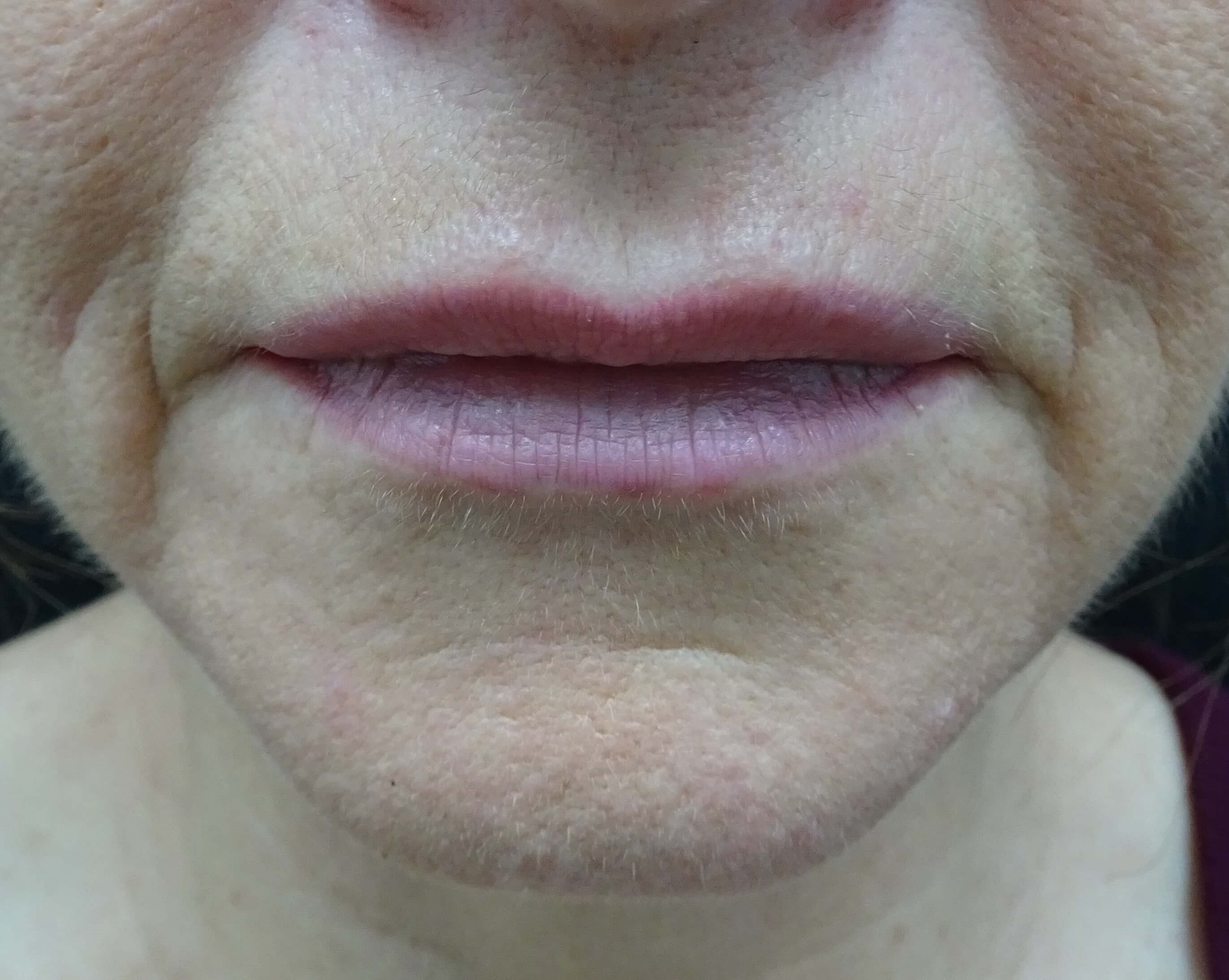 Restylane in Henderson & LV Before Restylane Injection