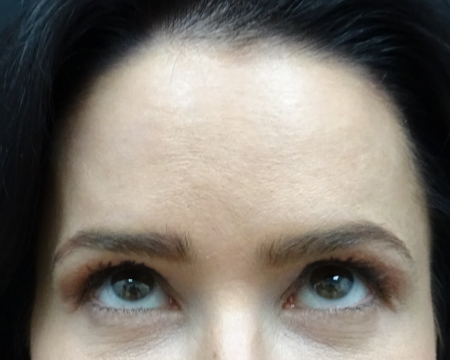 Botox in Henderson / Las Vegas Zero Lines 2 weeks After Botox