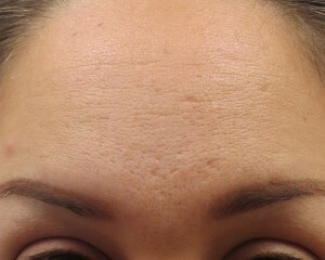 Acne Scars Improved by Dr. Lee After 2 Microneedling Sessions