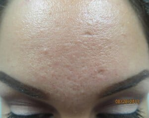 Acne Scars Improved by Dr. Lee Before Microneedling