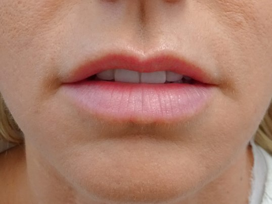 Lips Before & After Juvederm Lips Before Juvederm