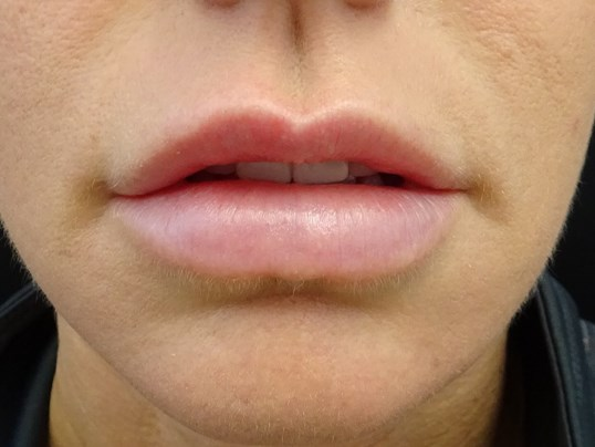 Lips Before & After Juvederm Lips After Juvederm
