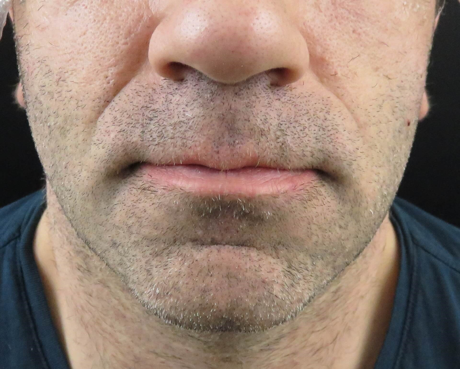Juvederm - Nasolabial Folds Before Juvederm Injections