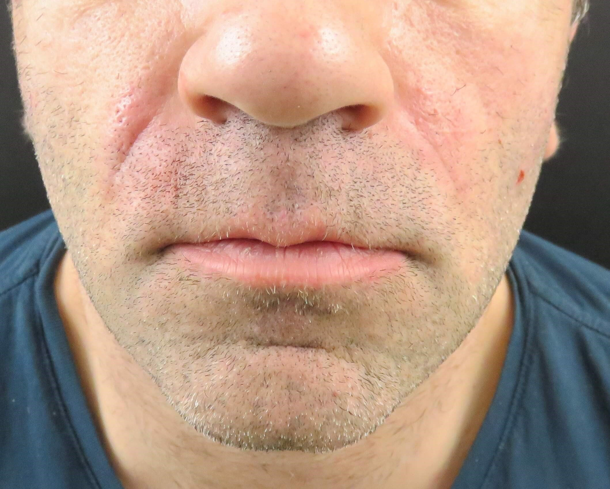 Juvederm - Nasolabial Folds Immediately After Injections