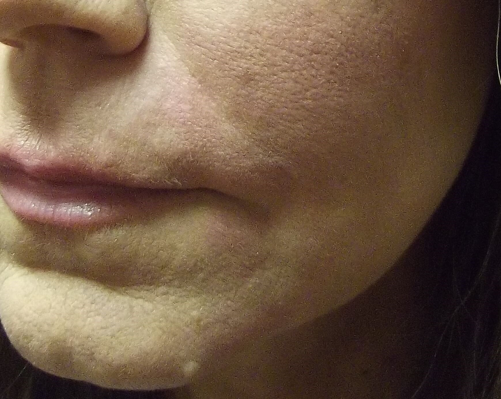 Juvederm Lifts Sagging Skin After Juvederm Injection