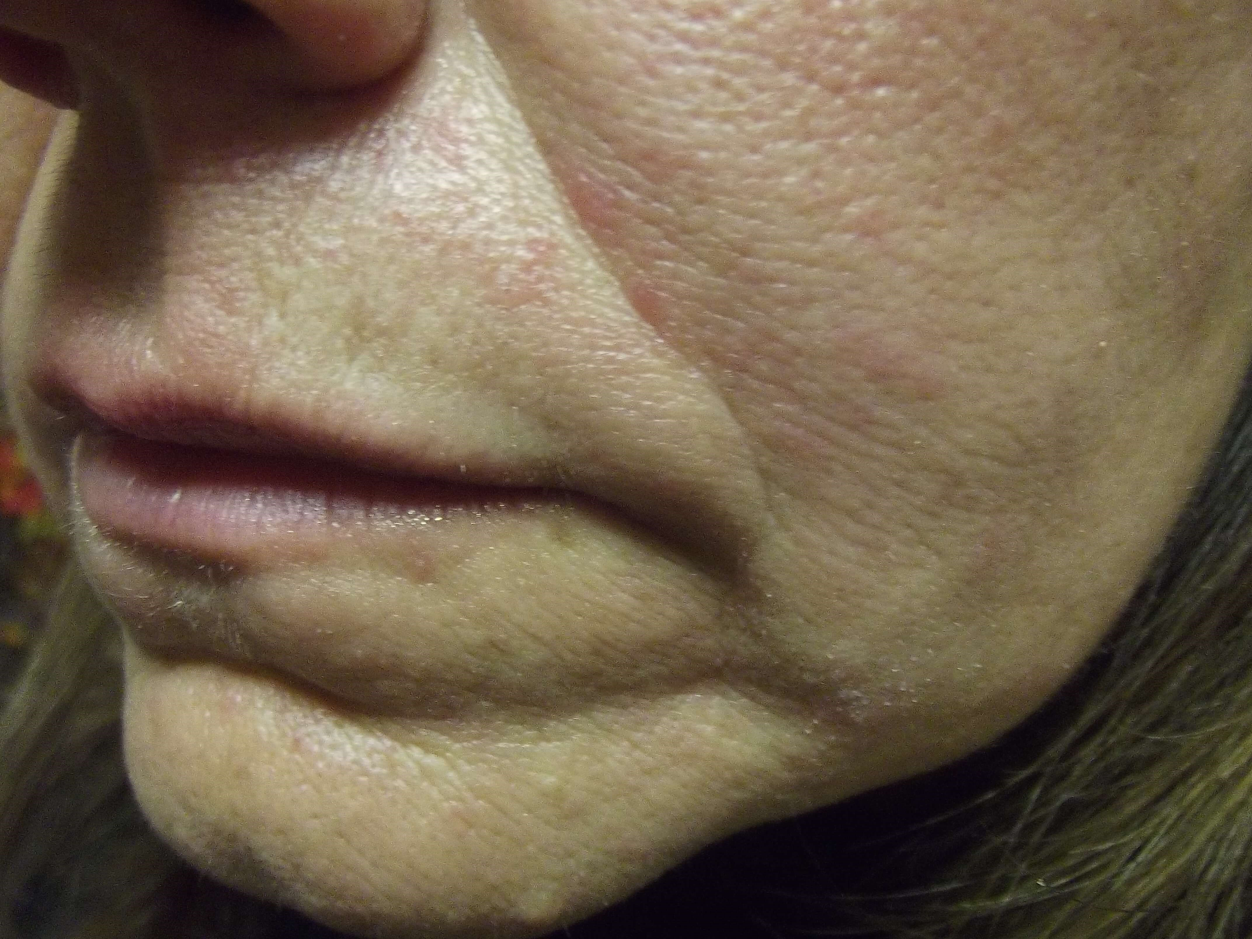 Juvederm Lifts Sagging Skin Before Juvederm Injections