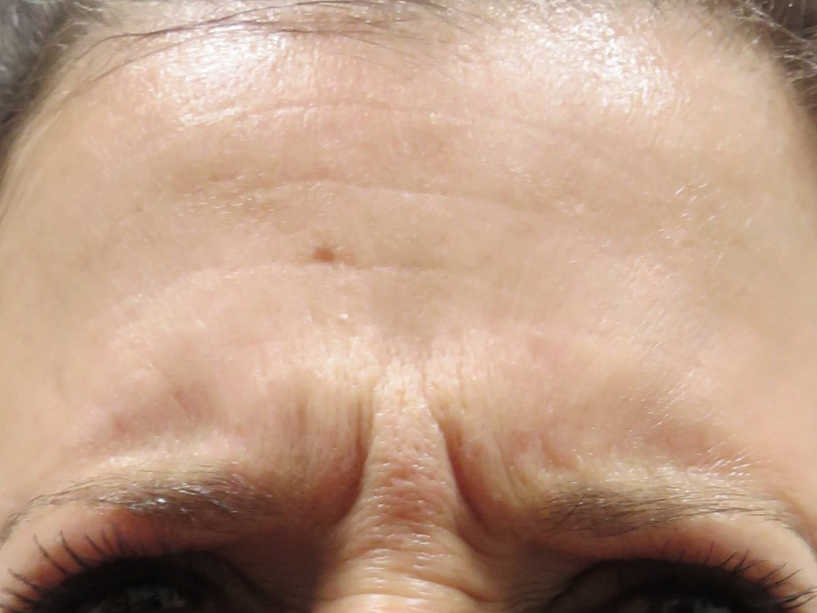 Dysport in Forehead by Dr. Lee Before Dysport Injections