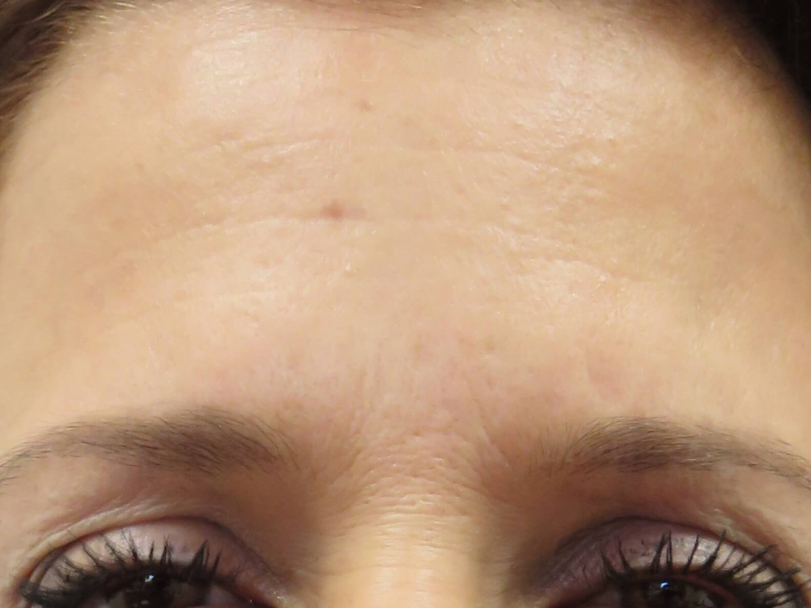 Dysport in Forehead by Dr. Lee After Dysport Injections