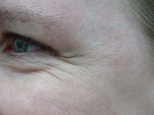 Dysport for Crows Feet in LV Before Dysport Injections