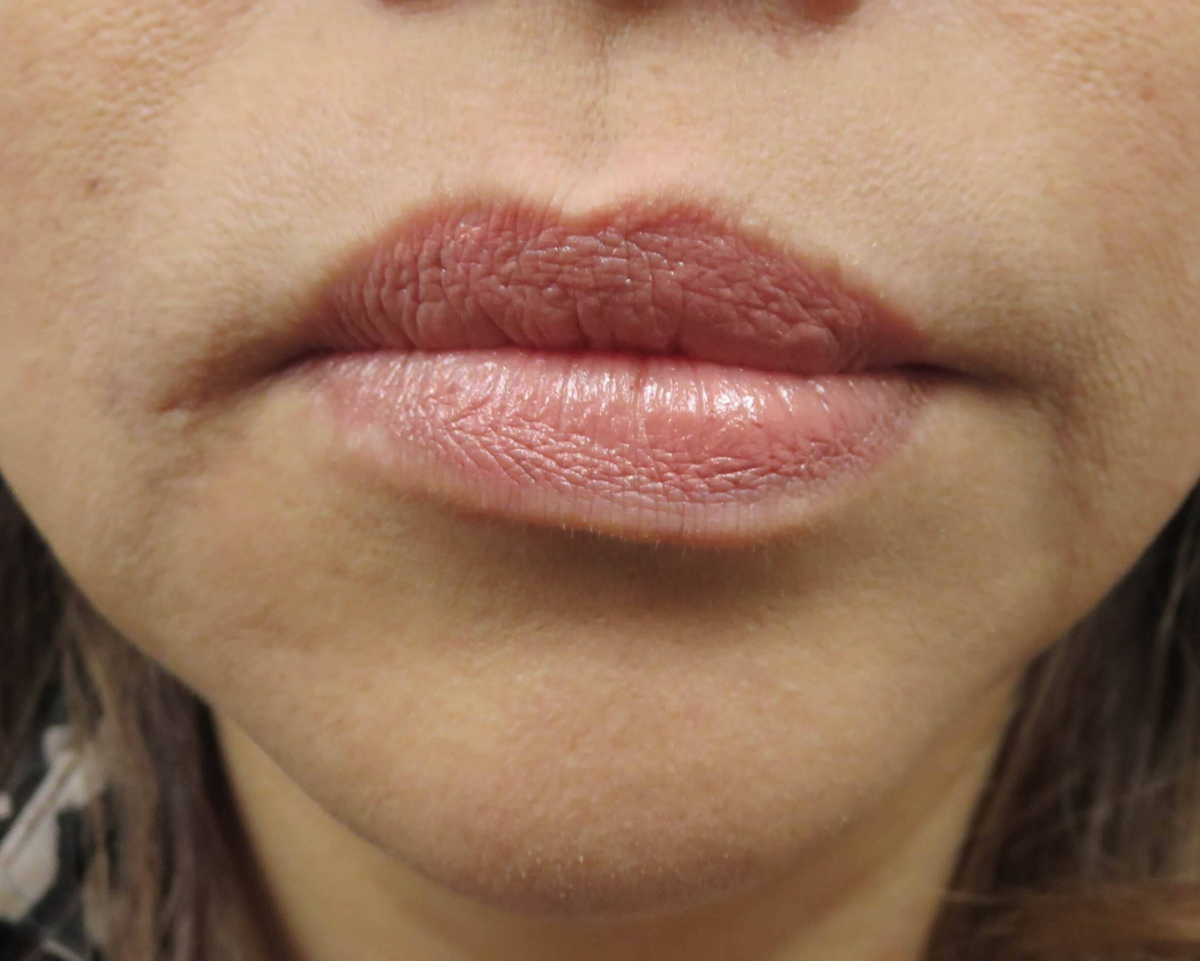 Non-Surgical Chin Job in Vegas Chin Before Voluma