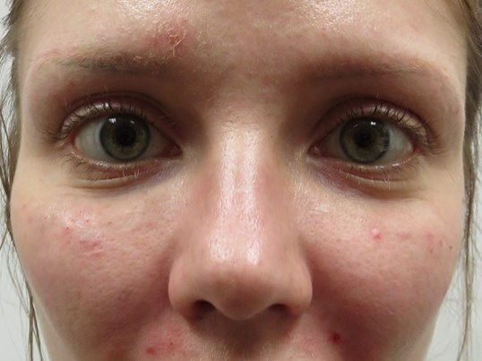 Under Eye Bags Improved in LV After Juvederm Voluma