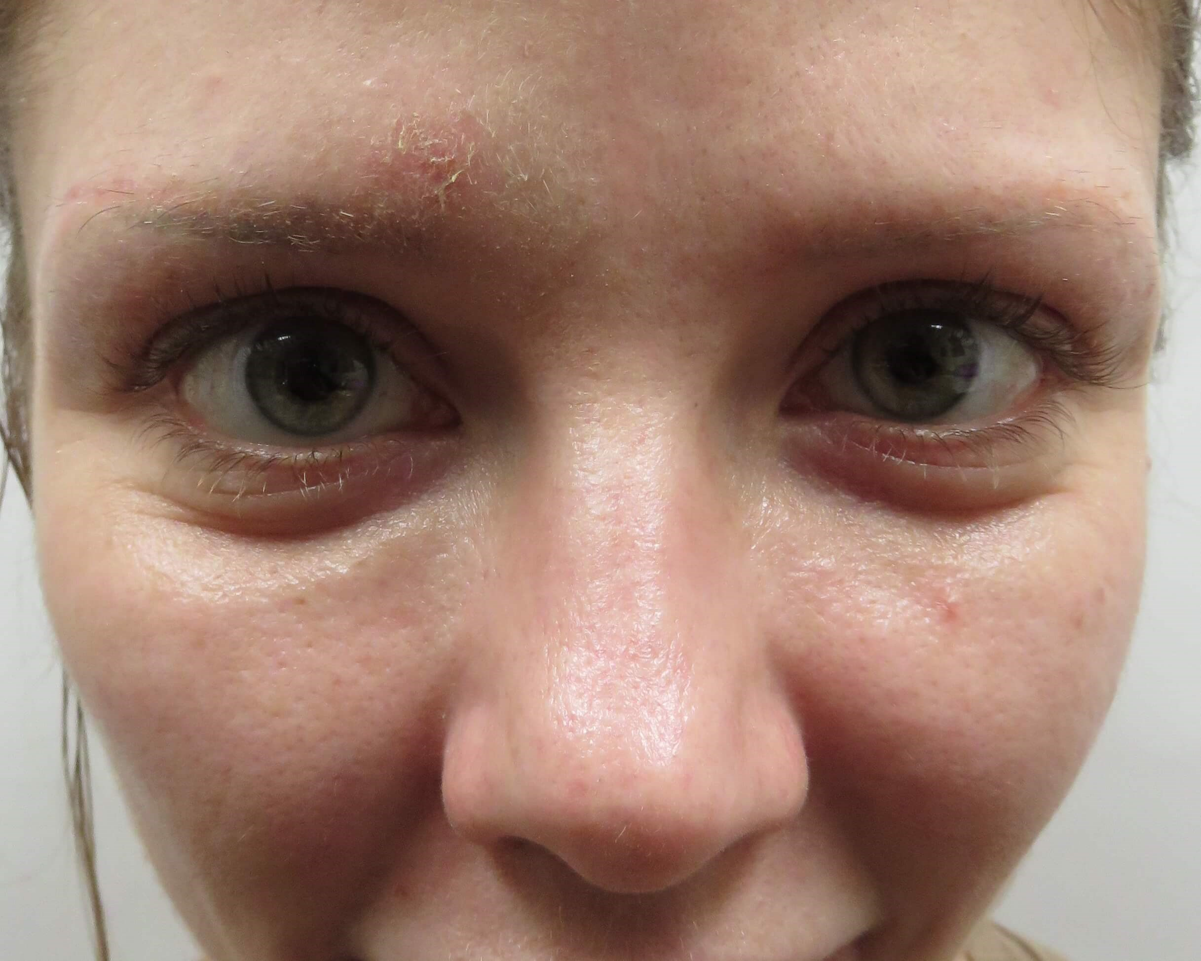 Under Eye Bags Improved in LV Before Juvederm Voluma