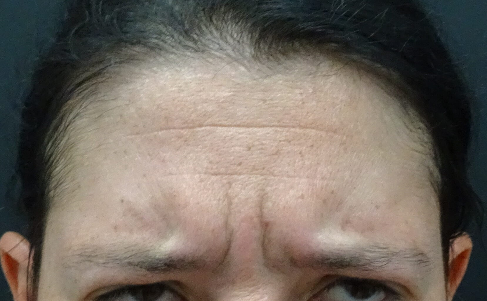No Frown Lines in Henderson Frown Lines Before Botox
