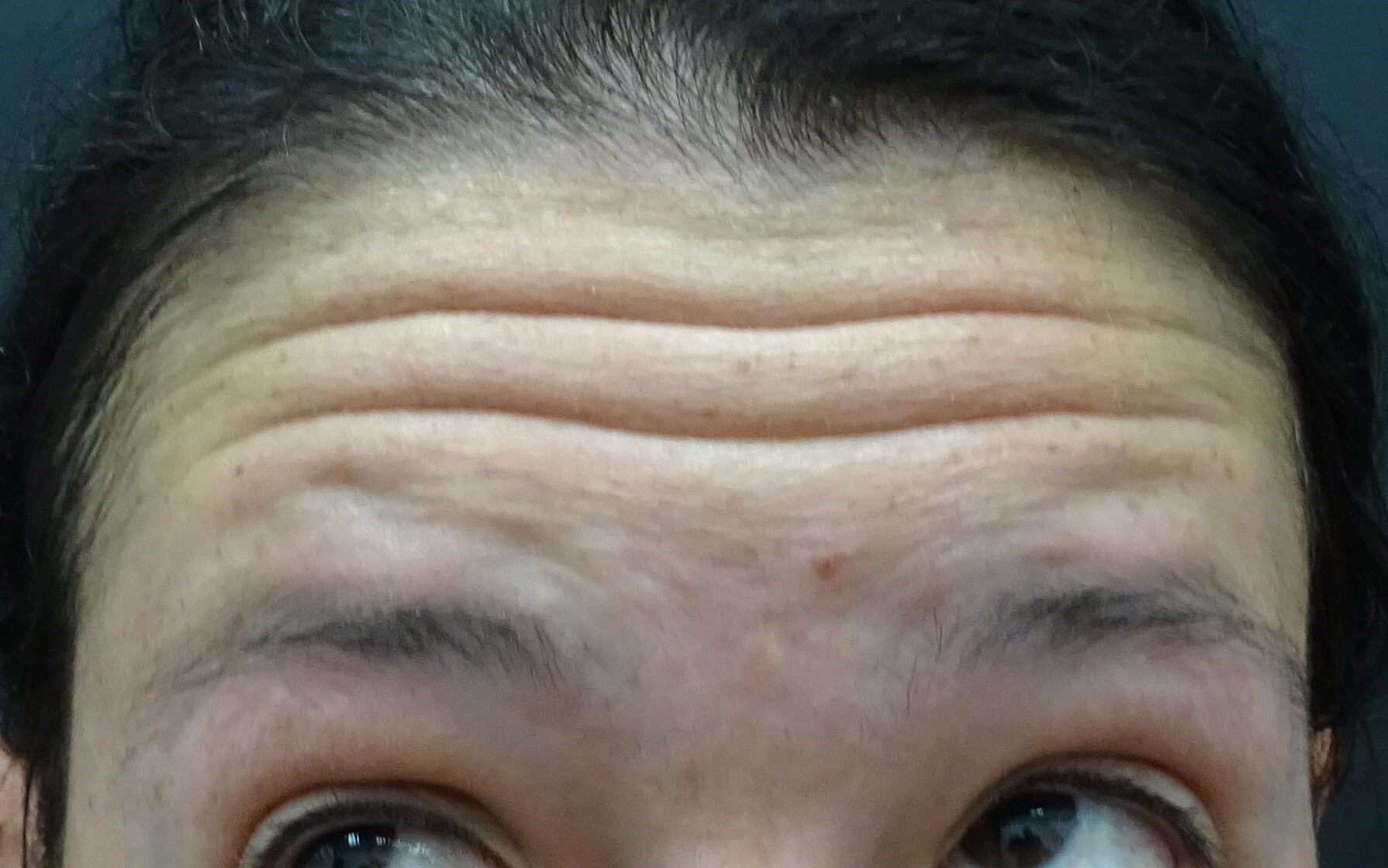 Pre-Wedding Botox in Henderson Forehead Wrinkles Before Botox