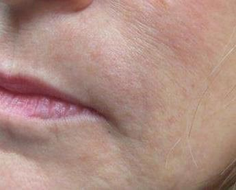 Juvederm Injected for Wrinkles Left Side After Juvederm
