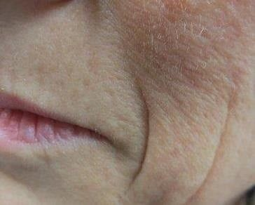 Juvederm Injected for Wrinkles Left Side Before Juvederm