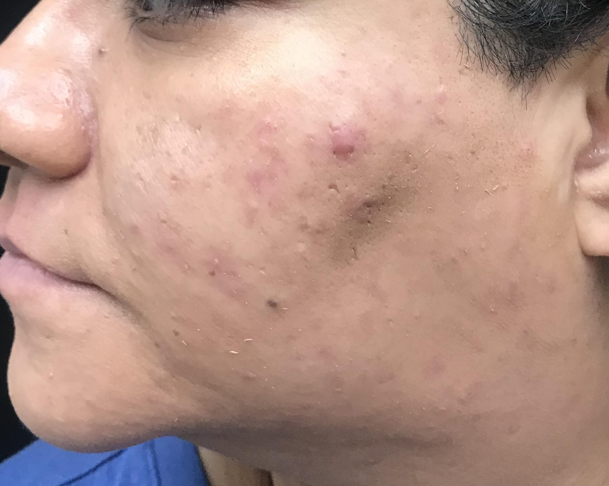 Chemical Peels Provide Results Left View After VI Peel