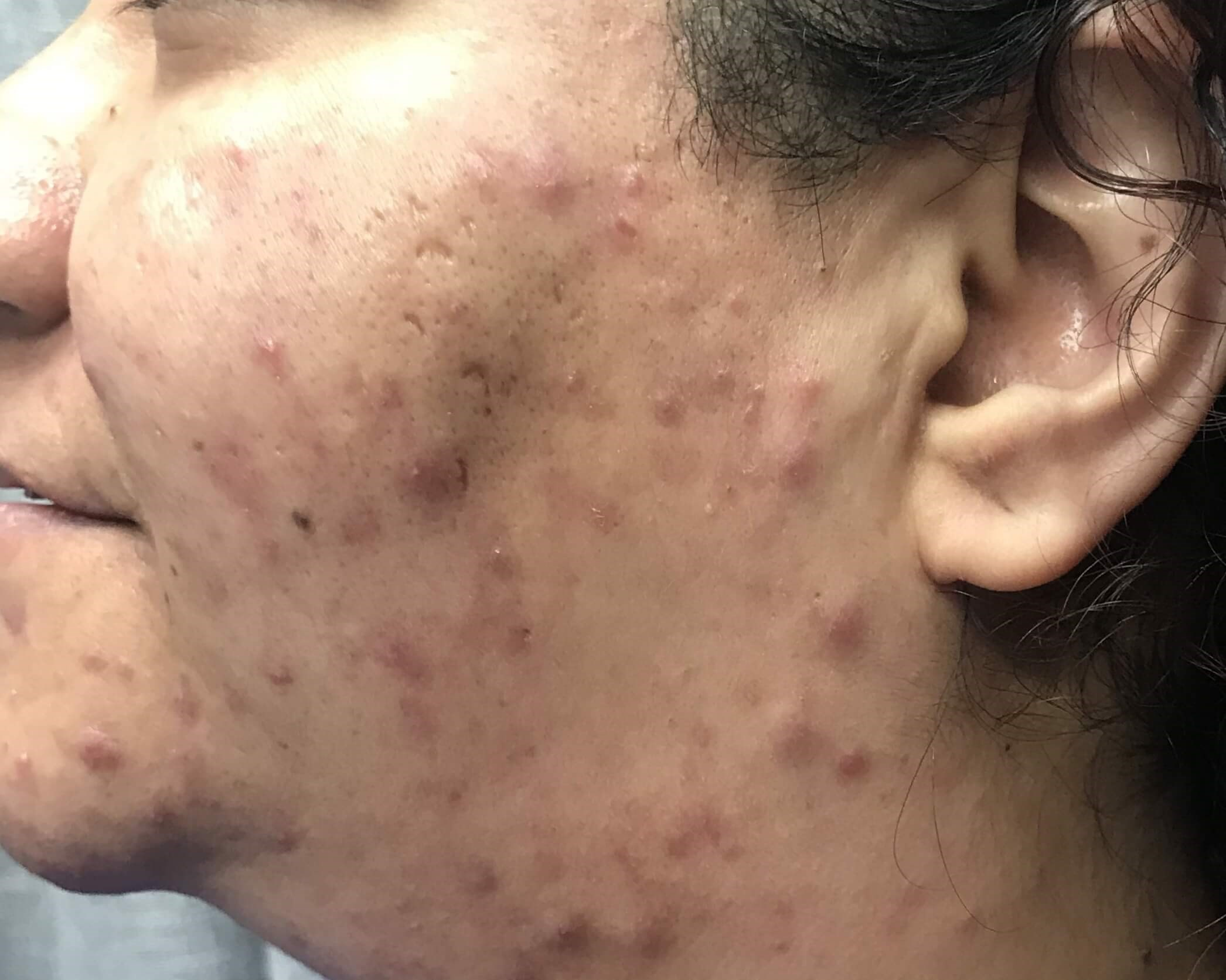 Chemical Peels Provide Results Left View Before VI Peel