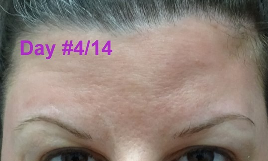 Botox Day #4/14--No ExpreSSION RELAXING Appearance On Day 4