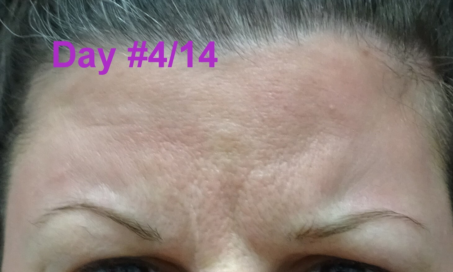 Botox Day #4/14--frowning EXCELLENT After ONLY 4 Days