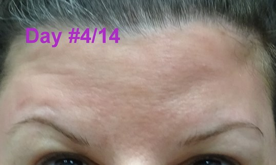 Botox Day #4/14--looking up  Raising Eyebrows ONLY Day #4