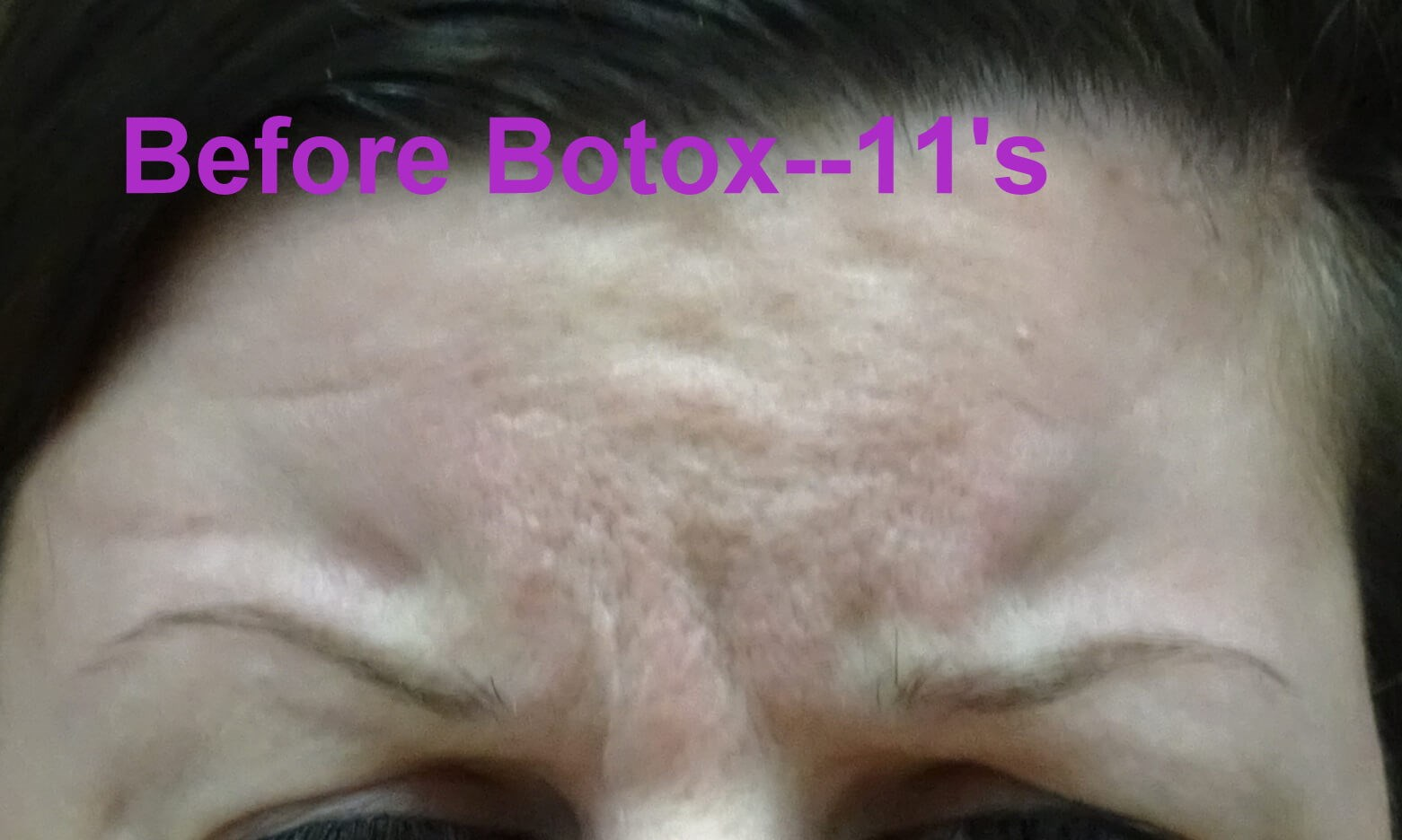 Botox Day #4/14--frowning Frowning (11's) Before Botox